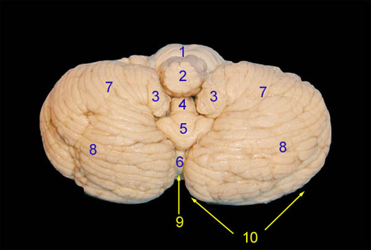 Inferior view of the Brain Stem and Cerebellum.