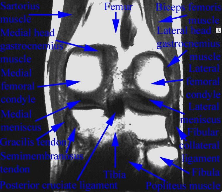 Department of Anatomy, Med. Univ. of Warsaw, Poland - Knee MRI - Scan 01